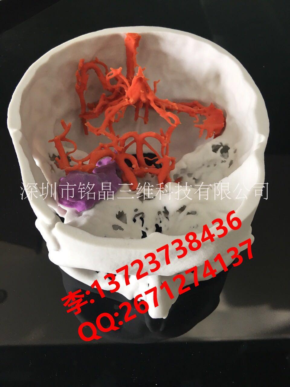 3D打印医疗模型  医疗教学模型